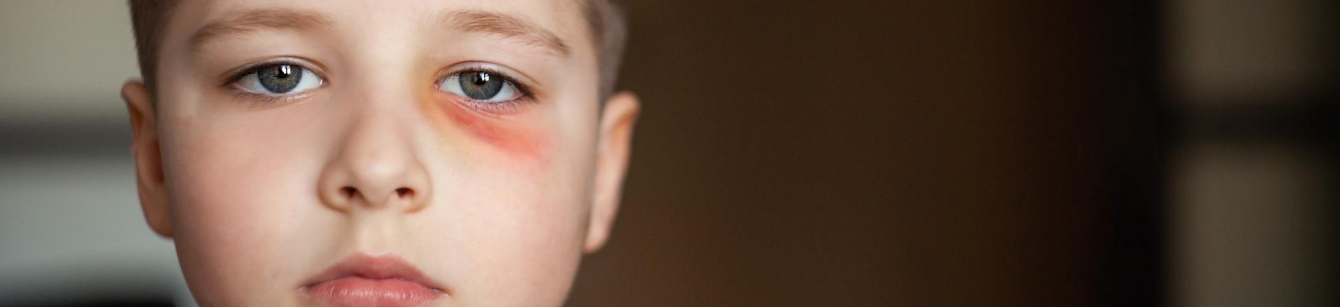 Trauma oprește copilăria. Donate și umple inima unui copil!